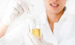 woman drug testing